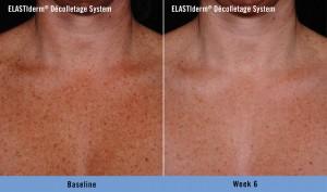 Obagi Before & After - SCG Rejuvenation