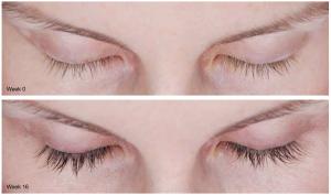 SCG Skin Rejuvenation Before & After from Latisse 2