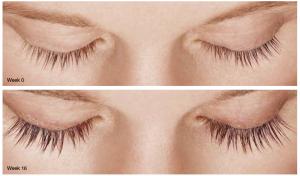 SCG Skin Rejuvenation Before & After from Latisse 3