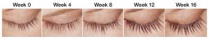 SCG Skin Rejuvenation Before & After from Latisse
