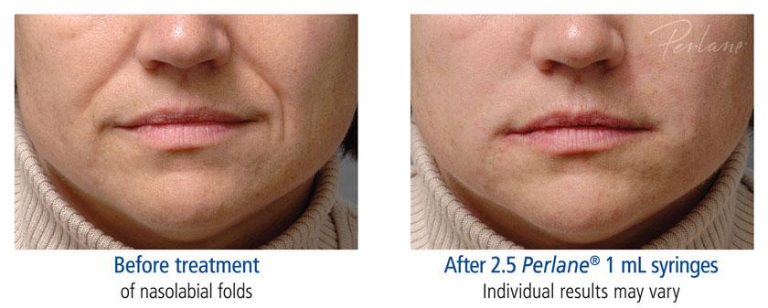 Dermal Filler Before Amp After With Scg Skin Rejuvenation