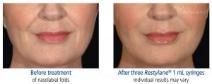 SCG Skin Rejuvenation Before & After from Restylane-1