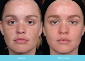 SCG Skin Rejuvenation Before & After Obagi Elastiderm Nu Derm