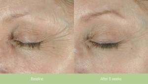 SCG Skin Rejuvenation Before & After Obagi Elastiderm Patient